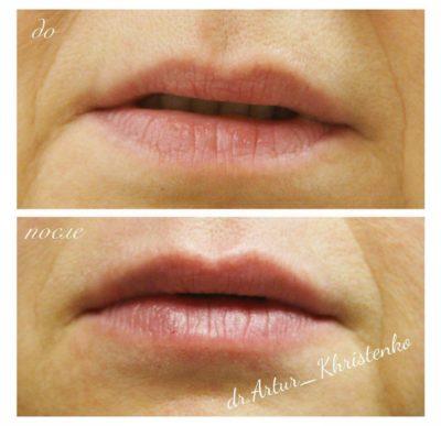 Увеличение губ филлером 21