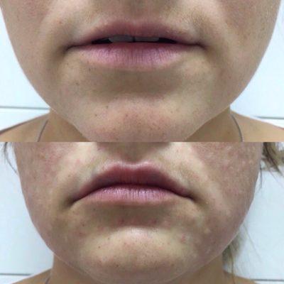 Увеличение губ филлером 6