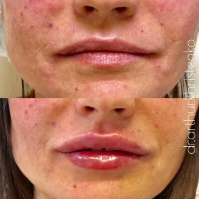 Увеличение губ филлером 22