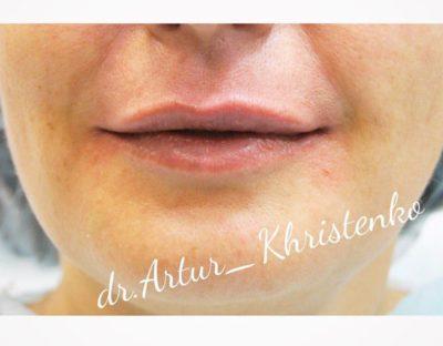 Увеличение губ филлером 23