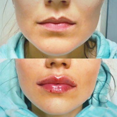 Увеличение губ филлером 24