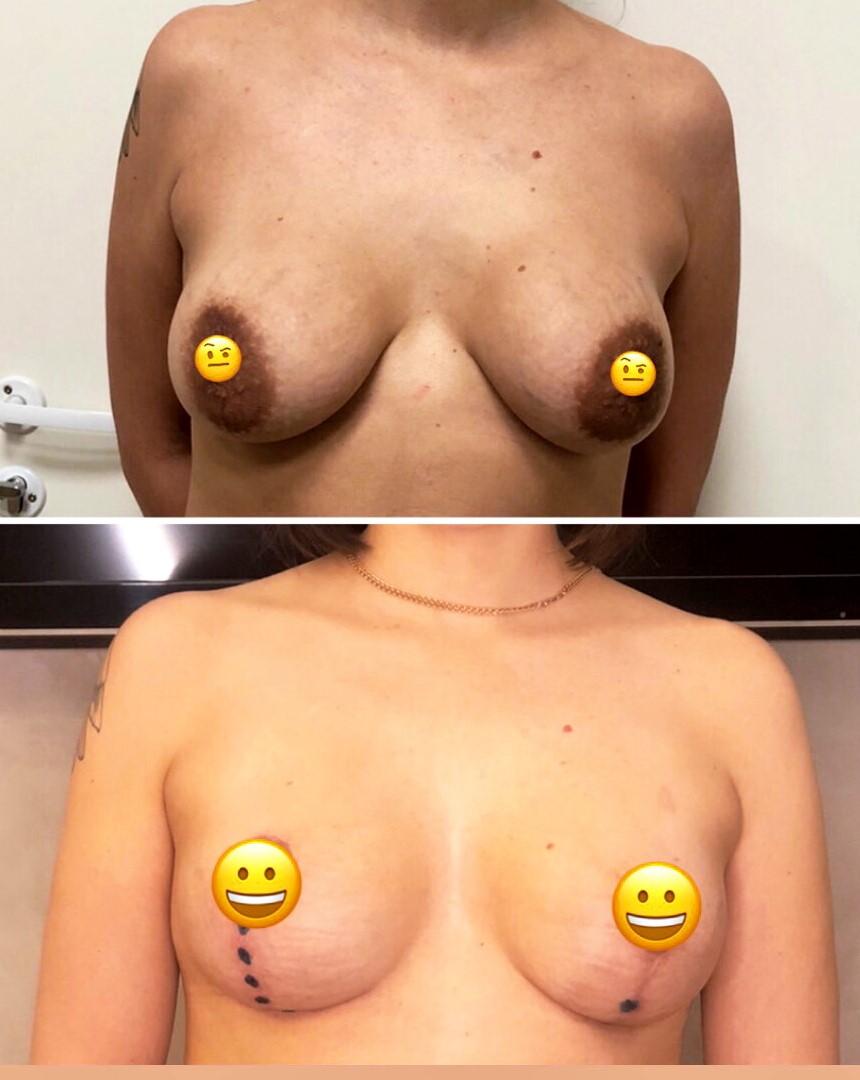 Вертикальная мастопексия на имплантах Mentor 300 ml круглые средний профиль (реэндопротезирование груди)