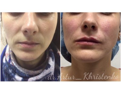 Увеличение губ филлером 26