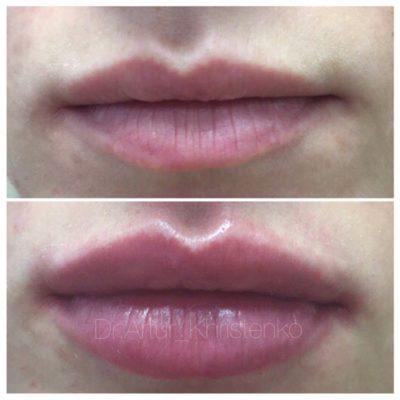 Увеличение губ филлером 27