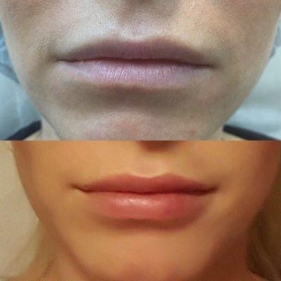 Увеличение губ собственным жиром 6