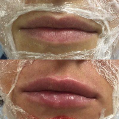 Увеличение губ филлером 31