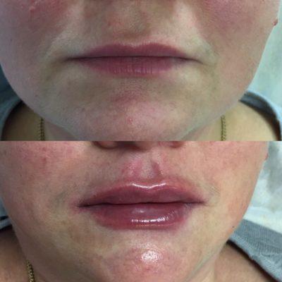 Увеличение губ филлером 32