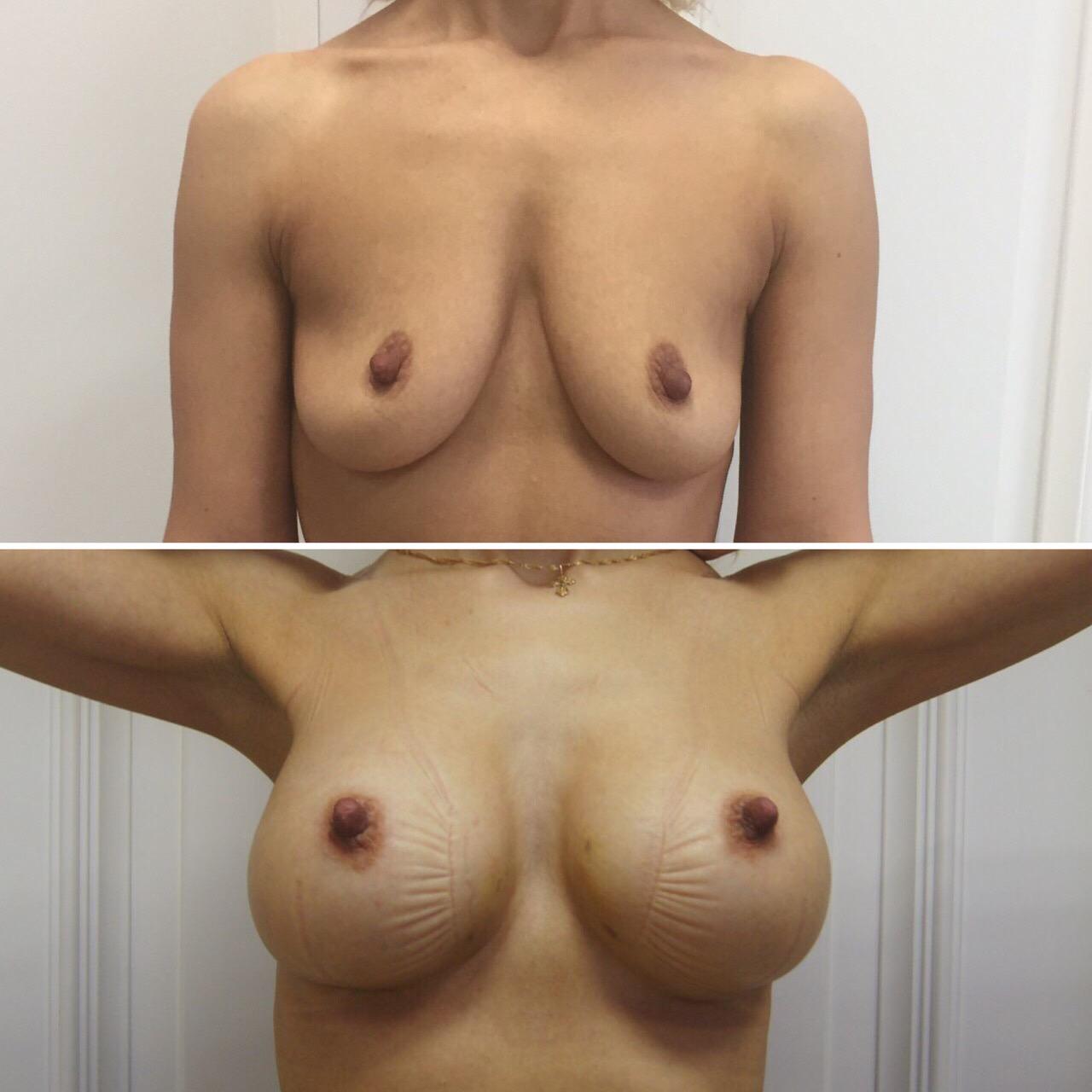 Увеличение груди имплантами Mentor круглые средний профиль 350 мл