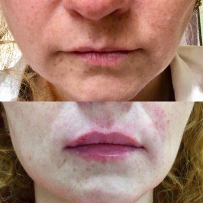 Увеличение губ филлером 33