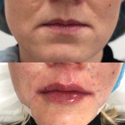 Увеличение губ филлером 34