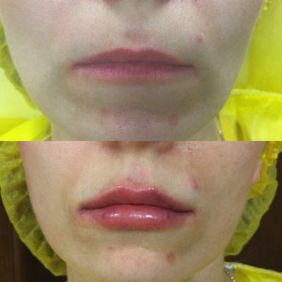 Увеличение губ филлером 35