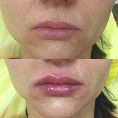 Увеличение губ филлером 36