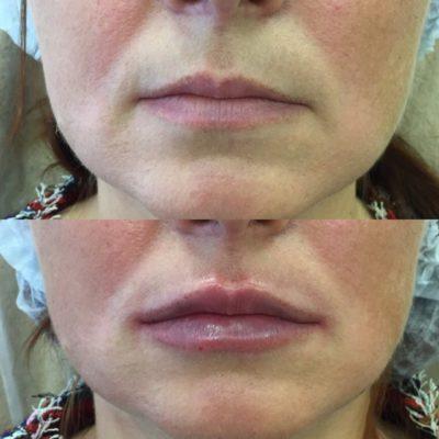 Увеличение губ филлером 28