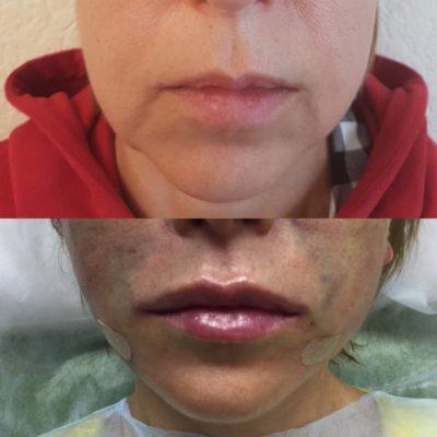 Увеличение губ филлером 38