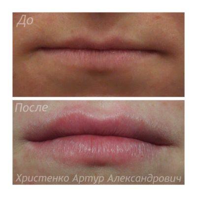 Увеличение губ филлером 39