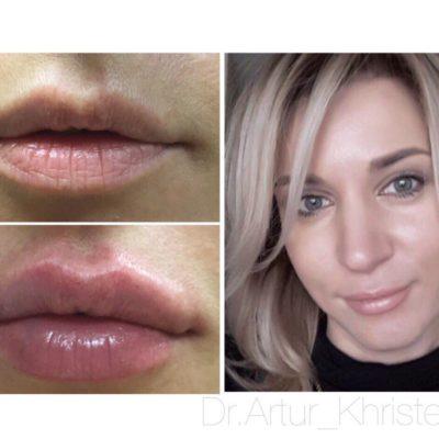 Увеличение губ филлером: естественный результат по доступной цене 40