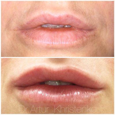 Увеличение губ филлером 41