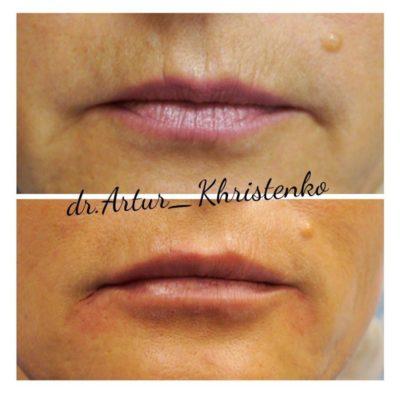 Увеличение губ филлером 43