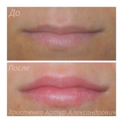 Увеличение губ филлером 44