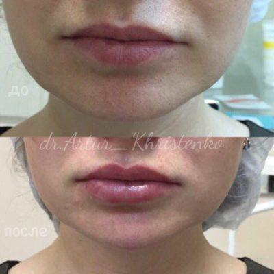 Увеличение губ филлером 20