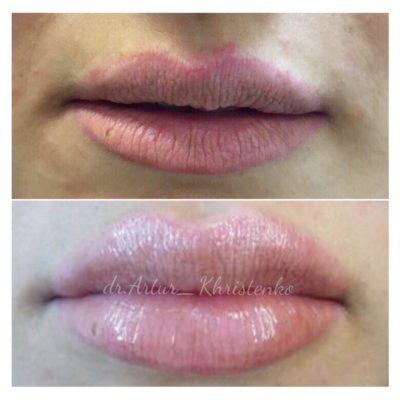 Увеличение губ филлером 46