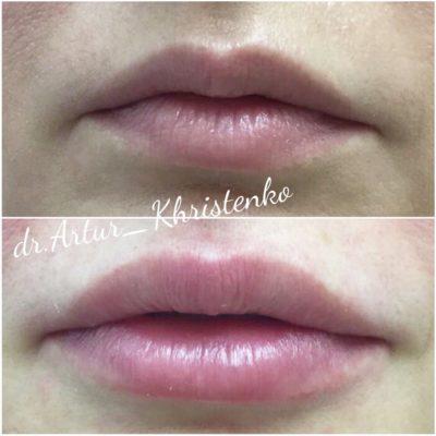 Увеличение губ филлером 47
