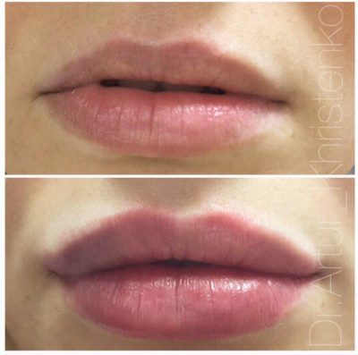 Увеличение губ филлером 48