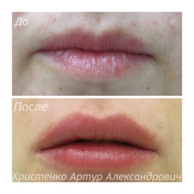 Увеличение губ филлером 49