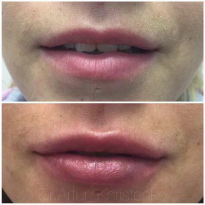 Увеличение губ филлером 50