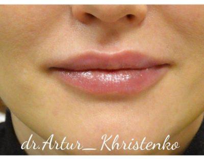 Увеличение губ филлером 51