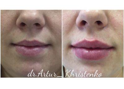 Увеличение губ филлером 52