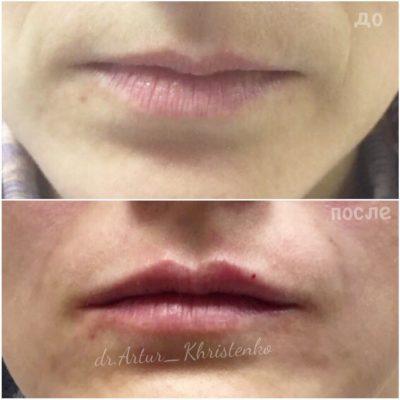 Увеличение губ филлером 53