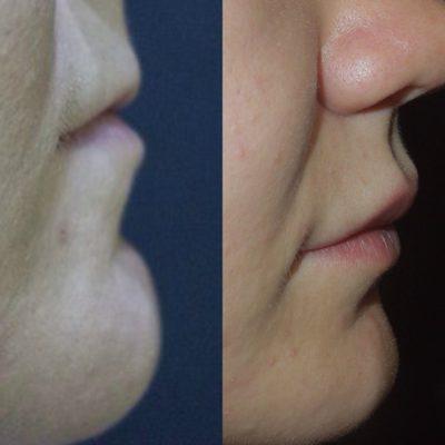 Увеличение губ филлером 0