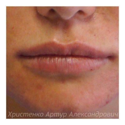 Увеличение губ филлером 54