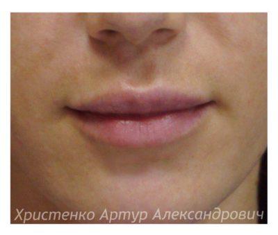 Увеличение губ филлером 55