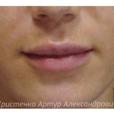 Увеличение губ филлером: естественный результат по доступной цене 55