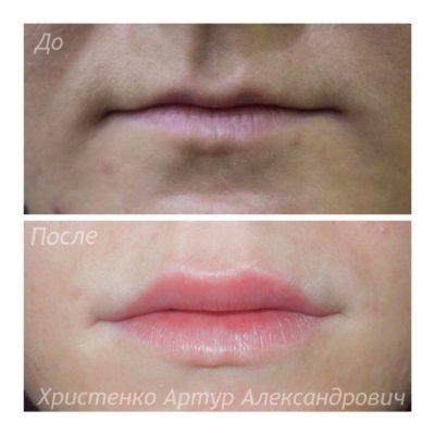 Увеличение губ филлером 56