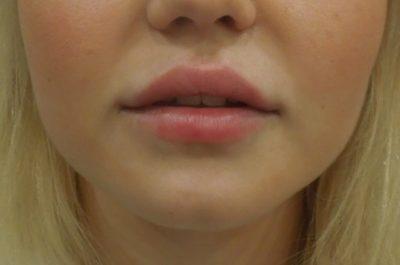 Увеличение губ филлером 57