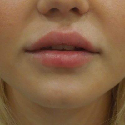 Увеличение губ филлером: естественный результат по доступной цене 57
