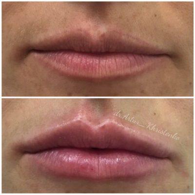Увеличение губ филлером 58