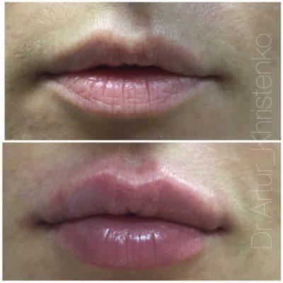 Увеличение губ филлером 59