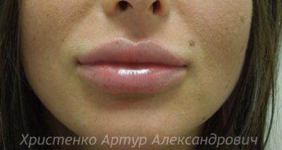 Увеличение губ филлером 60
