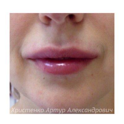 Увеличение губ филлером 61