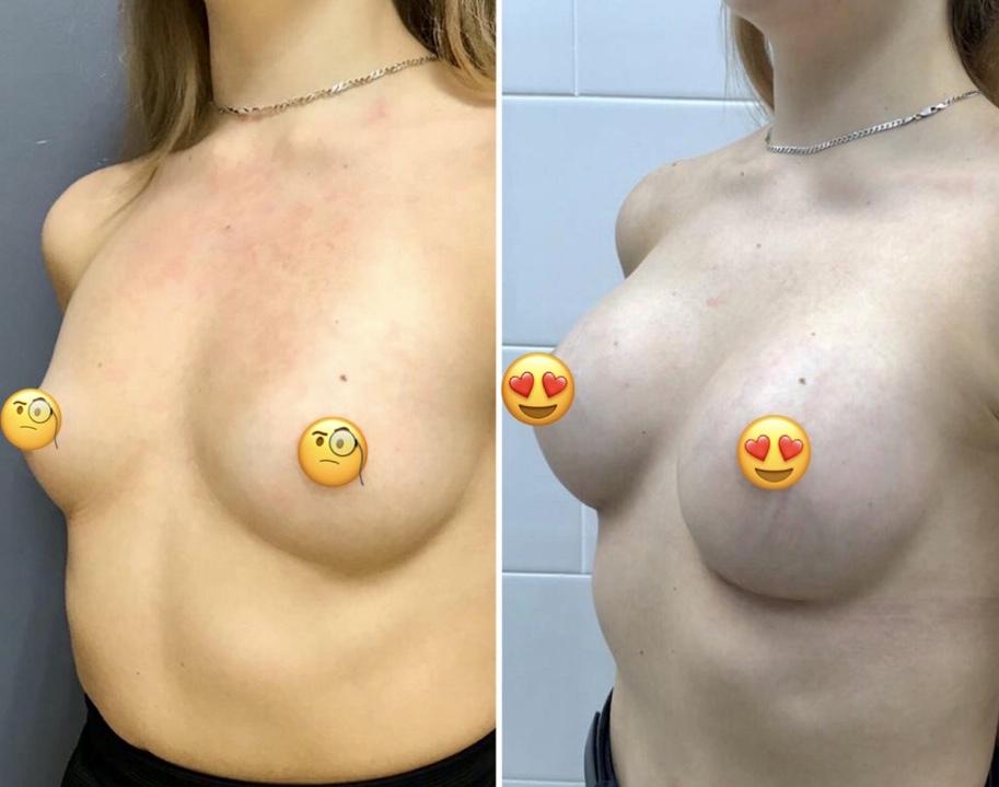 Увеличение груди имплантами Mentor круглые средний профиль 250 мл