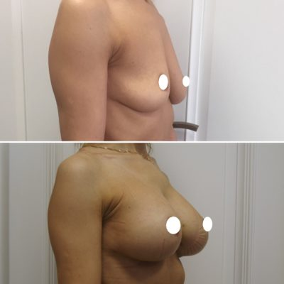 Имплантация груди 11