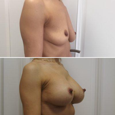 Имплантация груди с великолепным результатом 1