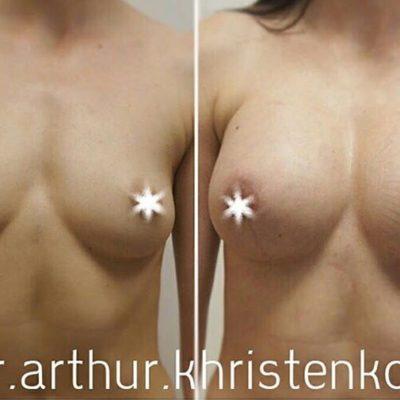 Имплантация груди с великолепным результатом 0