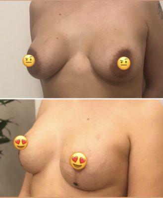 Имплантация груди 15