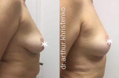 Коррекция груди после родов 2