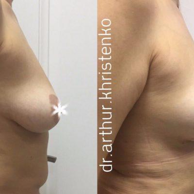 Коррекция груди после родов с превосходным результатом 2